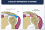 Shoulder Pain: Forward Shoulder Posture