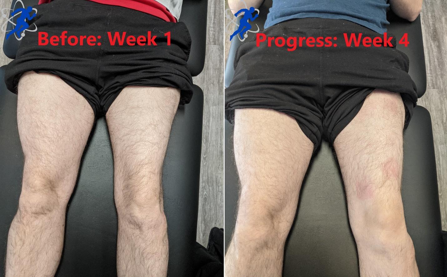 Post-Operative knee